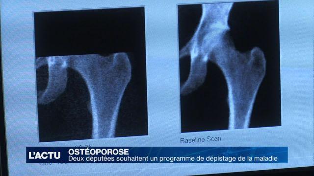 Un programme pour mieux prévenir et dépister l'ostéoporose