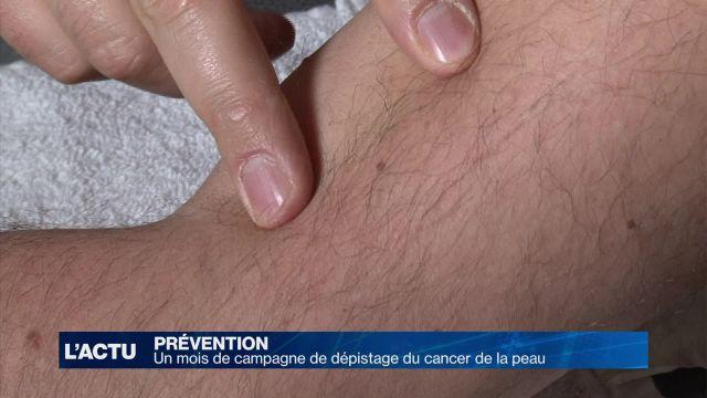 Un mois de campagne de dépistage du cancer de la peau