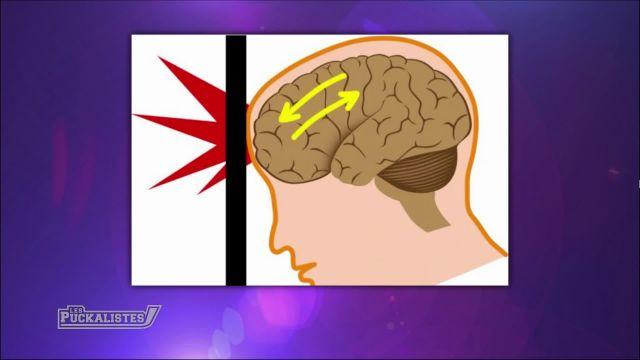 Les commotions cérébrales empoisonnent le monde du hockey